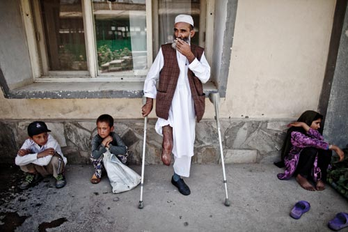A bearded, middle-aged man leans against the outside wall of a building. Crutches lean against the wall on either side of him. One pant leg is rolled up to reveal that he's missing his leg below the knee. He smokes. On either side of him, children crouch against the same wall.