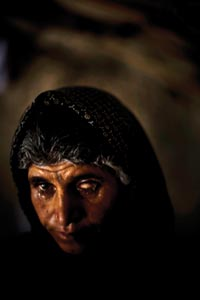 A serious, sad middle-aged woman looks at the camera. Her head is covered by a dark headscarf. One eye has no iris, just white sclera. It is surrounded by scar tissue on her cheek.