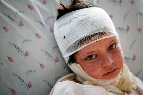 A sad-eyed little girl lies on a bed, her face and head bandaged. Her eyebrows have been singed off.