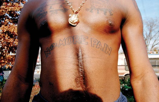 The torso of a man, from his upper chest down to his waist. Several tattoos are visible ('NO MORE PAIN' is most prominent), a gold medallion of a bulldog's head hangs from a thick chain around his neck, and a wide, striated scar runs vertically down the center of his abdomen.