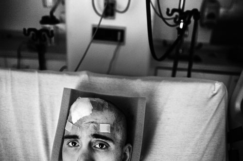 A closeup shot of Nick in his hospital bed with several bandages and gauze on his scalp.  There is medical machinery in the background behind him.